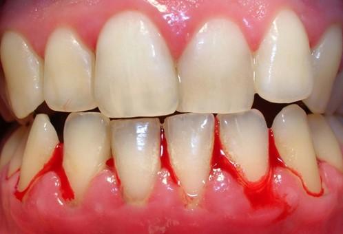 lấy cao răng bị chảy máu, lấy cao răng bị chảy máu có sao không, lấy cao răng bị chảy máu nhiều, lấy cao răng xong bị chảy máu liên tục, lấy cao răng có bị chảy máu không, lấy cao răng xong bị chảy máu, lấy cao răng về bị chảy máu, lấy cao răng bị chảy máu chân răng