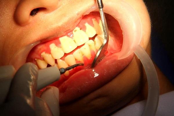 Lấy cao răng có chảy máu không phụ thuộc vào loại vôi răng