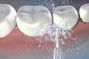 Lấy cao răng có chảy máu không?
