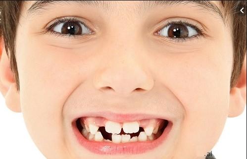 mơ mọc răng hàm, mơ mọc răng mới, mơ mọc răng đánh con gì, mơ mọc răng khôn, mơ mọc răng có ý nghĩa gì, mơ mọc răng đánh đề bao nhiêu, mơ mọc răng khểnh đánh con gì, mơ thấy mọc răng, nằm mơ mọc răng, mơ thấy con mọc răng, mơ thấy con mọc răng là điềm gì, mơ thấy con gái mình mọc răng, mơ thấy con mọc răng đánh con gì, mơ thấy em bé mọc răng, mơ thấy trẻ con mọc răng, mơ thấy con nít mọc răng, mơ thấy em bé mọc răng là điềm gì, mơ thấy trẻ con mọc răng đánh số mấy, mơ thấy trẻ mọc răng, nằm mơ thấy mọc răng, nằm mơ thấy mọc răng khôn, nằm mơ thấy mọc răng khểnh, ngủ mơ thấy mọc răng, nằm mơ thấy mọc răng mới, nằm mơ thấy mọc răng đánh con gì, nằm mơ thấy mọc răng cửa, mơ thấy mọc răng mới, giải mã giấc mơ thấy mọc răng, nằm mơ thấy mọc răng đánh số mấy, mơ thấy mọc răng, mơ thấy mọc răng nanh, mơ thấy mọc răng cửa, mơ thấy mọc răng khôn, mơ thấy mọc răng đánh đề con gì, mơ thấy mọc răng số mấy, mơ thấy răng mọc lệch, mơ thấy răng mọc dài ra, mơ thấy răng mọc dài, nằm mơ thấy mọc răng