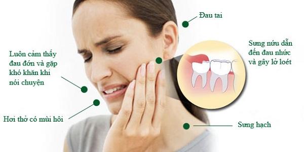 Nhổ răng số 8 có đau không – chuyên gia nha khoa tư vấn
