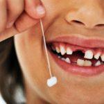 Nhổ răng sữa cho bé như thế nào là an toàn nhất?