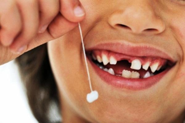 nhổ răng sữa, nhổ răng sữa cho bé, nhổ răng sữa chưa lung lay, nhổ răng sữa bị sâu, nhổ răng sữa cho bé ở đâu, nhổ răng sữa cho trẻ đúng cách, nhổ răng sữa bị sún, nhổ răng sữa cho trẻ, bé nhổ răng sữa, nhổ răng sữa khi chưa lung lay, cách nhổ răng sữa không đau