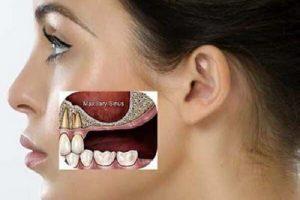 Niềng răng có bị hóp má không, làm sao để niềng răng không bị hóp má?