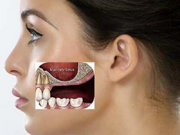 niềng răng có bị hóp má không, niềng răng xong bị hóp má, niềng răng có bị hóp má, tại sao niềng răng bị hóp má, làm sao để niềng răng không bị hóp má, bị hóp má khi niềng răng, tại sao niềng răng lại bị hóp má, nieng rang bi hop ma, niềng răng hóp má, hóp má khi niềng răng