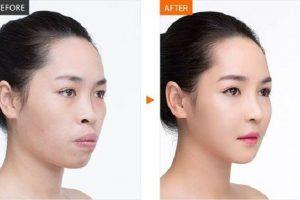 Niềng răng có làm thay đổi khuôn đổi khuôn mặt không?