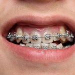 Niềng răng móm có phải nhổ răng không?