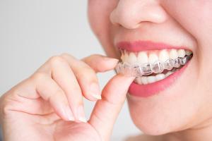 Review niềng răng Invisalign Webtretho | Niềng răng invisalign có hiệu quả không