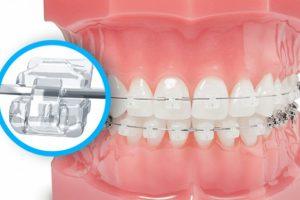 Niềng răng mắc cài pha lê trong suốt | Giải pháp hoàn hảo để chỉnh nha