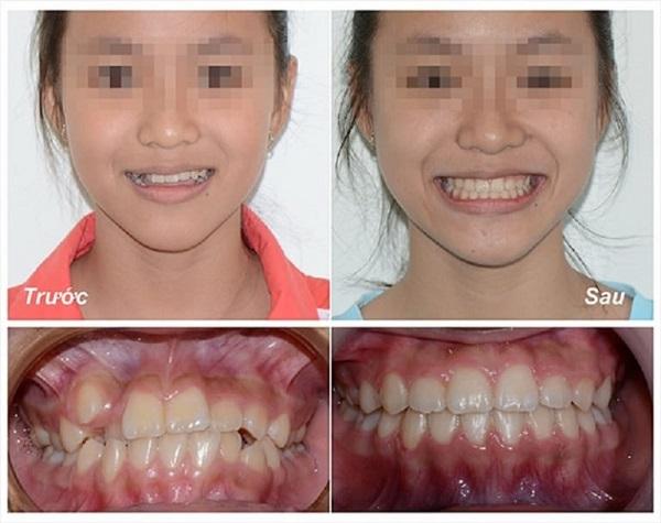 niềng răng invisalign, quy trình niềng răng invisalign, Kết quả trước sau niềng răng Invisalign