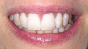 răng cửa to dài, răng cửa to và dài, răng cửa to và dài nên làm gì, răng cửa dài hơn, răng cửa dài nên làm gì, mài răng cửa dài, mài răng cửa bị dài, mài răng cửa to, mài răng cửa bị to, răng cửa to có nên mài, răng cửa to phải làm sao, răng cửa to nên làm gì, răng cửa to có mài được không, răng cửa dài, răng cửa bị dài