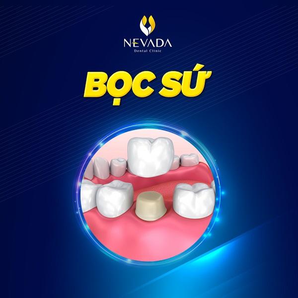 cách xử lý răng bị mẻ, bị mẻ răng thì làm sao, trám răng cửa bị mẻ có đau không, bọc răng sứ cho răng cửa bị mẻ, trám răng mẻ có đau không