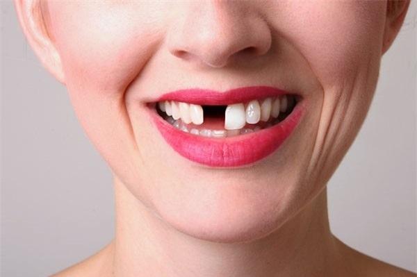 Sưng nướu răng và nổi hạch có nguy hiểm không? Sung-nuou-rang-va-noi-hach-3