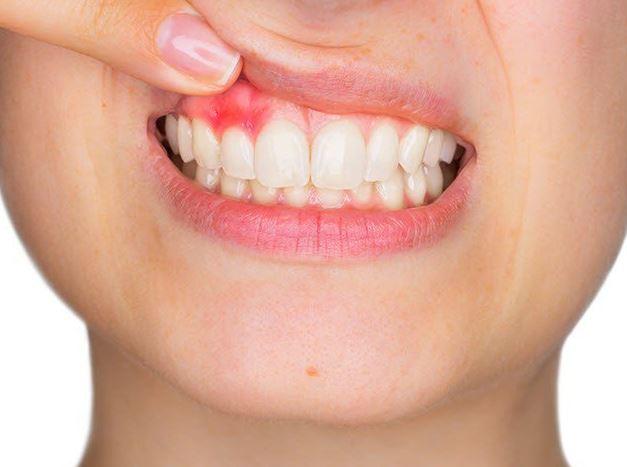 Sưng nướu răng và nổi hạch có nguy hiểm không? Sung-nuou-rang-va-noi-hach-6