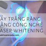 Tẩy trắng răng Laser Whitening giá bao nhiêu tại Nha khoa Quốc tế Nevada?