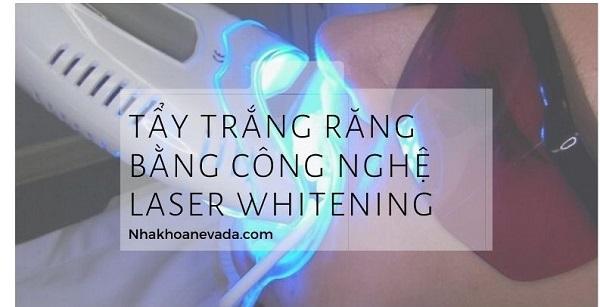 Tẩy trắng răng Laser Whitening giá bao nhiêu