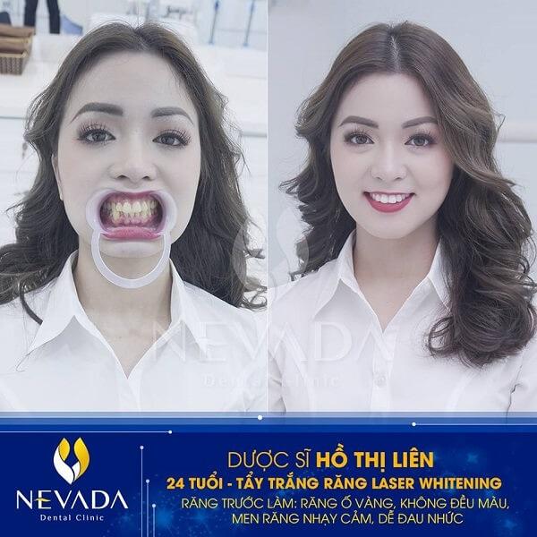 tẩy trắng răng bằng Laser Whitening bao nhiêu tiền, tẩy trắng răng laser whitening giá bao nhiêu