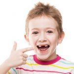 Thay răng sữa bao lâu thì mọc lại răng mới?