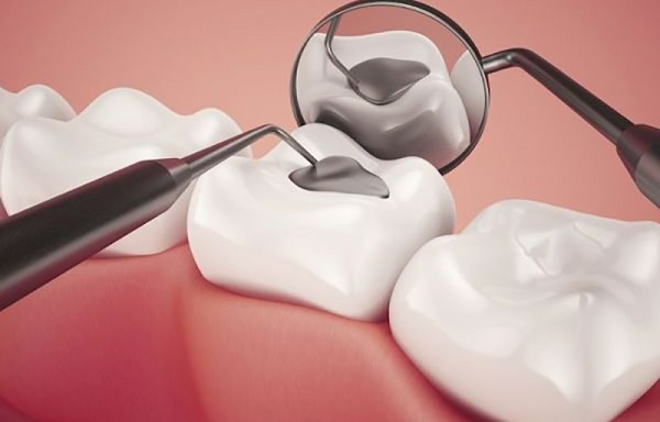 trám răng lấy tủy giá bao nhiêu, trám răng sâu lỗ to, trám răng mất bao lâu, trám răng sứ bao nhiêu tiền, trám răng laser tech bao nhiêu tiền, trám răng sâu nặng, trám răng lấy tuỷ mất bao lâu