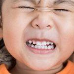 Tại sao trẻ ngủ nghiến răng? Cách chữa bệnh ngủ nghiến răng ở trẻ