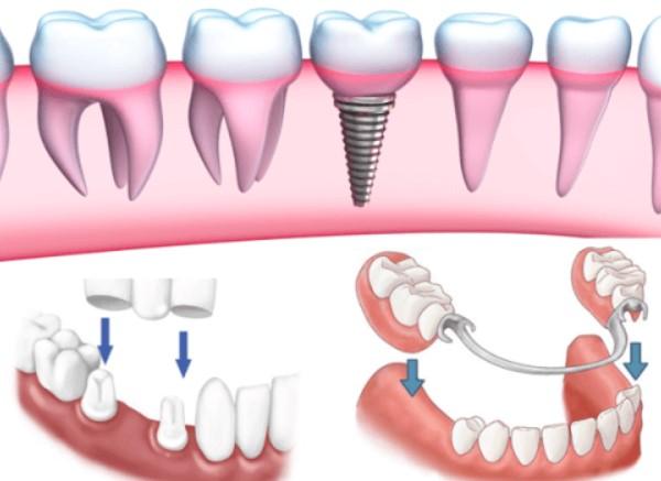 răng giả có niềng được không, trồng răng giả có niềng được không, làm răng giả có niềng được không, răng đã lấy tủy có niềng được không, niềng răng giả, trồng răng có niềng được không, trồng răng có niềng được không, trồng răng có niềng được không, răng sứ có niềng được không, trồng răng nguyên hàm, trồng răng