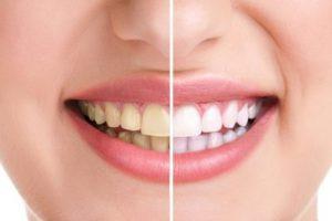 7 nguyên nhân nhân gây vàng răng hôi miệng bạn cần biết