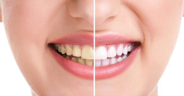 nguyên nhân nhân gây vàng răng hôi miệng