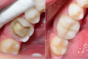 Vỡ răng hàm phải làm sao để phục hồi nhanh nhất?
