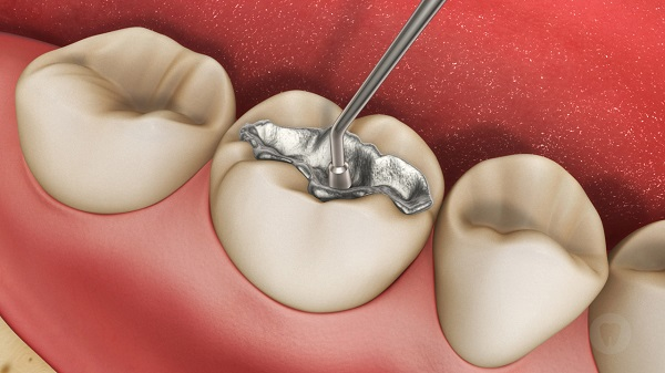 Bọc răng sứ có cần mài răng không ?