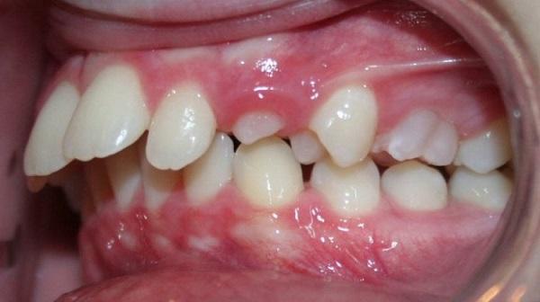 xem tướng răng hô, tướng răng hô, những người răng hô, xem tướng miệng hô, răng hô duyên, phụ nữ răng hô, tướng phụ nữ răng hô, xem tướng đàn ông răng hô, người răng hô
