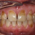 Bài thuốc dân gian chữa viêm chân răng
