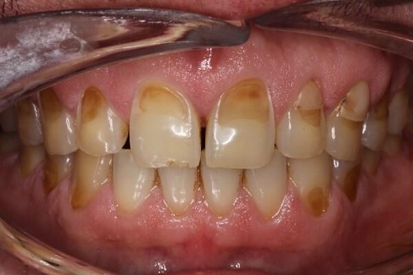 cách chữa viêm chân răng, chữa viêm chân răng có mủ, chữa viêm chân răng, chữa viêm chân răng có mủ tại nhà, bài thuốc dân gian chữa viêm chân răng, thuốc chữa viêm chân răng, cách chữa viêm chân răng tại nhà, chữa viêm chân răng bằng thuốc nam, cách chữa viêm chân răng cho bà bầu, cách chữa viêm chân răng hôi miệng, mẹo chữa viêm chân răng, chữa viêm chân răng tại nhà, cách chữa viêm chân răng có mủ, cách chữa viêm chân răng dân gian, chữa viêm chân răng cho bà bầu, chữa viêm chân răng bằng lá lốt, chữa viêm chân răng tụt lợi, chữa viêm chân răng ở trẻ em, cách chữa viêm chân răng ở trẻ em, bài thuốc chữa viêm chân răng, cách chữa viêm chân răng hàm, mẹo chữa viêm chân răng tại nhà, cach tri viem chan rang, chữa viêm chân răng bằng thuốc nam