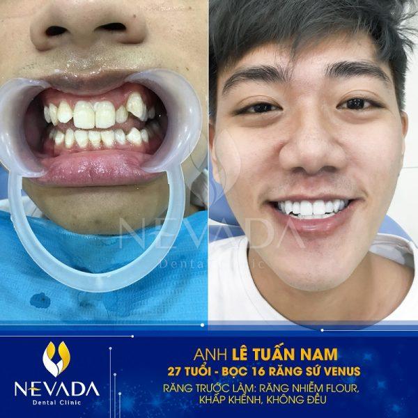 trồng răng sứ giá bao nhiêu tiền, trồng răng mất bao nhiêu tiền, trồng răng bao nhiêu tiền một cái, trồng răng sứ khi bị mất răng