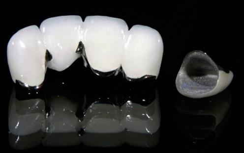 Bọc răng sứ Titan có mấy loại?
