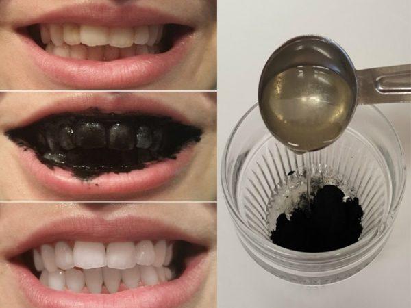 đánh răng bằng than hoạt tính có tốt không, đánh răng bằng than tre hoạt tính có tốt không, bột trắng răng than hoạt tính có tốt không, bột trắng răng than tre hoạt tính có tốt không, than hoạt tính trắng răng có tốt không, tẩy trắng răng bằng than hoạt tính có tốt không, có nên tẩy trắng răng bằng than hoạt tính