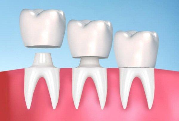Cách chữa sâu răng hàm