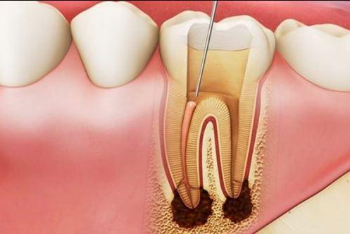 cách diệt tủy răng tại nhà, cách lấy tủy răng tại nhà, đặt thuốc làm chết tuỷ răng, làm sao để chết tuỷ răng, cách làm chết tủy răng tại nhà, cách làm chết tủy răng, thuốc làm chết tủy răng, cách làm chết tủy răng, nhét thuốc làm chết tủy răng, làm chết tủy răng tại nhà