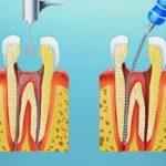 Cách làm chết tủy răng tại nhà – Hiệu quả hay không?