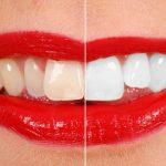 Mách nàng cách làm trắng răng bị vàng tại nhà hiệu quả