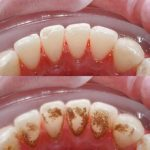 Lấy cao răng có đau không? Câu trả lời từ chuyên gia