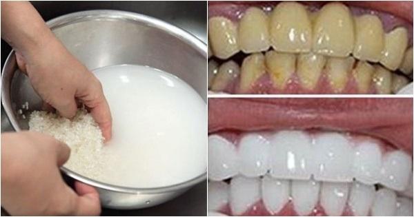 Cách làm trắng răng bị vàng, cách làm trắng răng bị vàng tại nhà, cách tẩy trắng răng bị ố vàng tại nhà, tại sao răng ố vàng, cách làm trắng răng ố vàng bằng muối, cách làm trắng răng ố vàng bằng baking soda, cách làm trắng răng ố vàng cho trẻ em, các làm trắng răng bị vàng ố, cách làm trắng răng ố vàng bằng tan hoạt tính, cách làm trắng răng khi bị ố vàng, cách làm trắng răng bị ố vàng hiệu quả