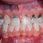 Cao răng đen là gì? Cách chữa cao răng đen tại nhà