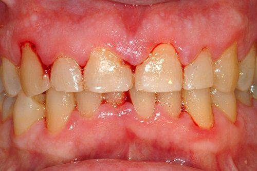 chữa viêm chân răng có mủ, chữa viêm chân răng có mủ tại nhà, cách chữa viêm chân răng có mủ, thuốc chữa viêm chân răng có mủ