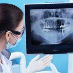 Tổng hợp những điều cần biết về chụp X quang răng