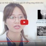 Chuyên gia giải đáp các thắc mắc phổ biến về Niềng răng chỉnh nha