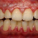 Có nên cạo vôi răng? Câu hỏi nay đã có đáp án