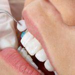 Dán răng sứ có hại không? Đọc ngay để biết