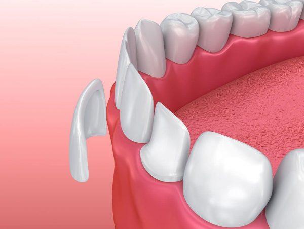 dán răng sứ, dán răng sứ giá, dán răng sứ thẩm mỹ, dán răng sứ được bao lâu, dán răng sứ có tốt không,dán răng sứ sử dụng được bao lâu, dán răng sứ có đau không, dán răng sứ bao nhiêu tiền, dán răng sứ có hại không,dán răng sứ có bền không, dán răng sứ giá bao nhiêu, dán răng sứ ở đâu tốt nhất, dán răng sứ loại nào tốt nhất, có nên dán răng sứ, dán răng sứ bao lâu, dán răng sứ mất bao lâu, độ bền của dán răng sứ