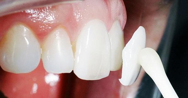 dán răng sứ có tốt không, dán răng sứ có hại không, dán răng sứ có ảnh hưởng gì không