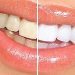 Giá lấy cao răng – Đọc ngay kẻo lỡ!